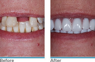 01 - Before and After Before and After Dentist in Austin, TX